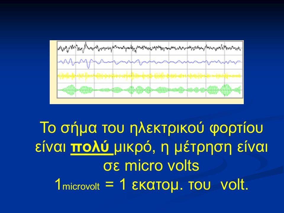 Το σήμα του ηλεκτρικού φορτίου είναι πολύ μικρό, η μέτρηση είναι σε micro volts 1 microvolt = 1 εκατομ.