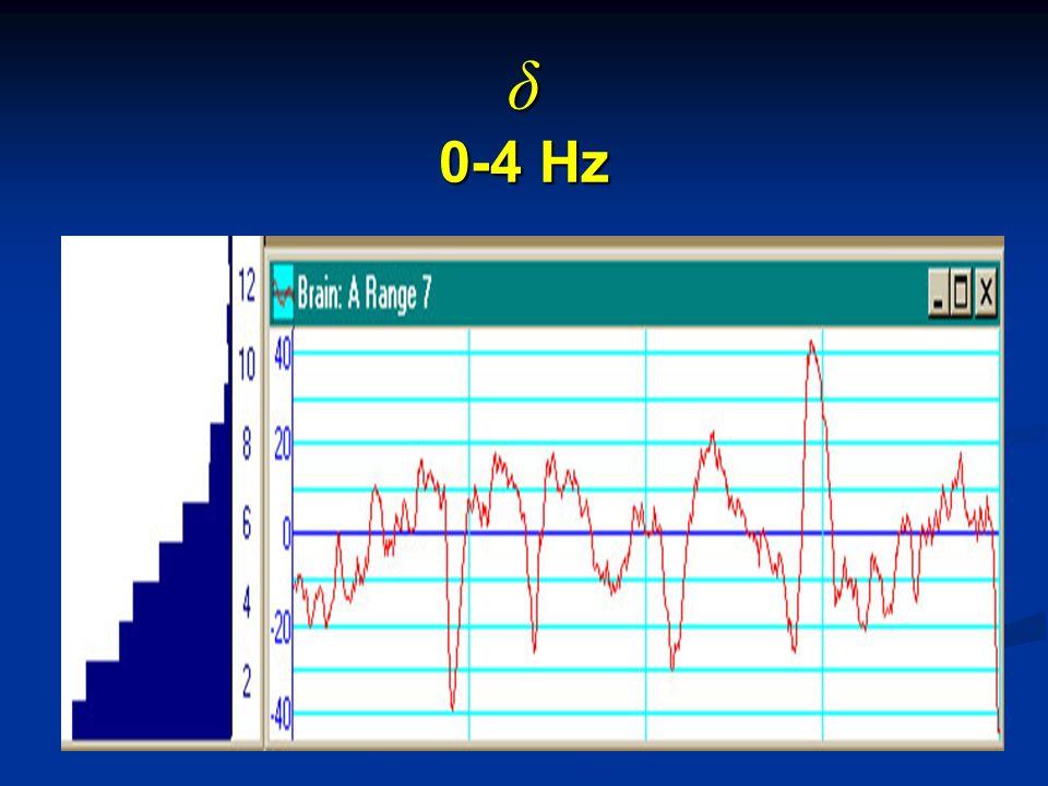 δ 0-4 Hz