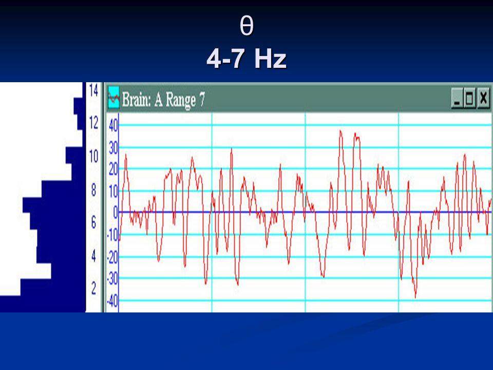 θ 4-7 Hz
