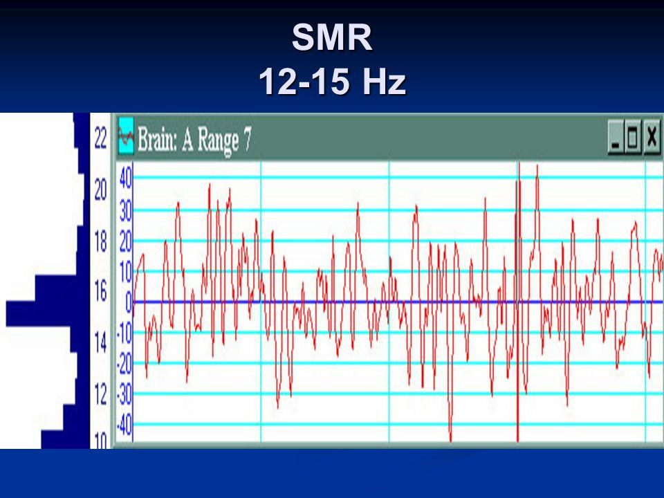 SMR 12-15 Hz