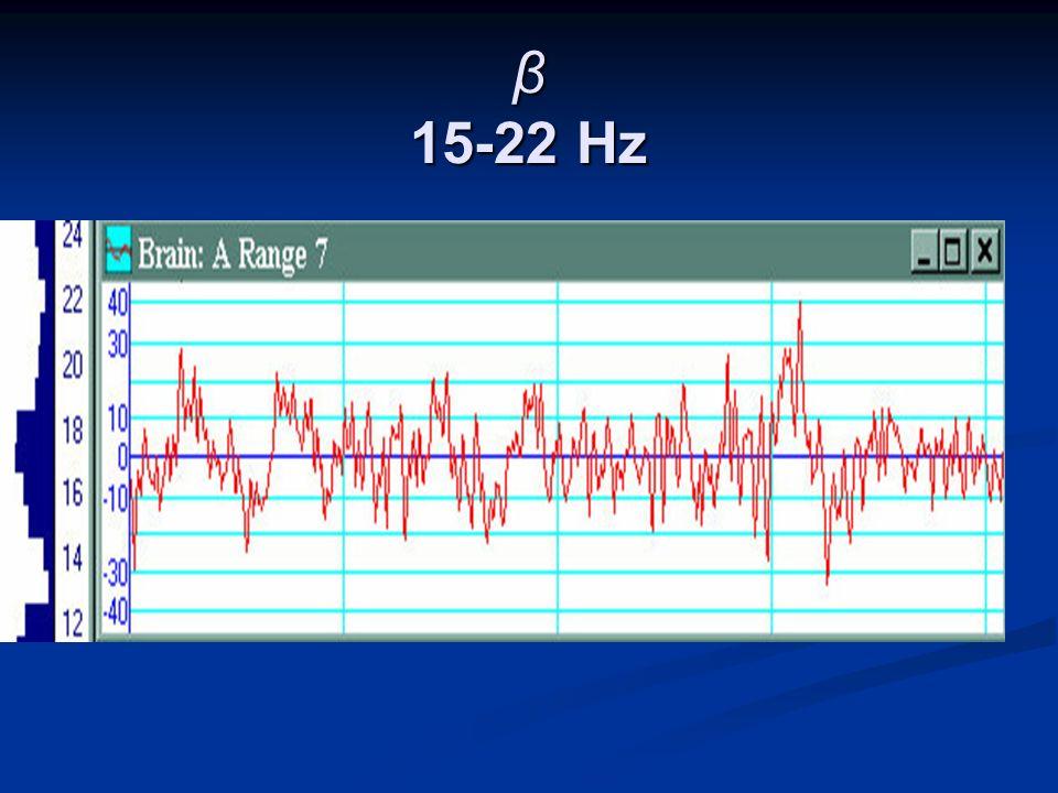 β 15-22 Hz