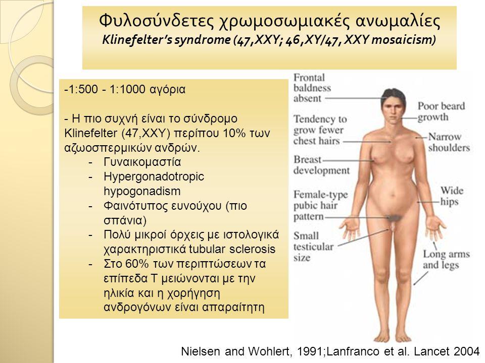 Φυλοσύνδετες χρωμοσωμιακές ανωμαλίες Klinefelter's syndrome (47,XXY; 46,XY/47, XXY mosaicism) -1:500 - 1:1000 αγόρια - Η πιο συχνή είναι το σύνδρομο Klinefelter (47,XXY) περίπου 10% των αζωοσπερμικών ανδρών.