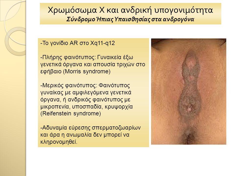 Χρωμόσωμα Χ και ανδρική υπογονιμότητα Σύνδρομο Ήπιας Υπαισθησίας στα ανδρογόνα -Το γονίδιο AR στο Xq11-q12 -Πλήρης φαινότυπος: Γυναικεία έξω γενετικά όργανα και απουσία τριχών στο εφήβαιο (Morris syndrome) -Μερικός φαινότυπος: Φαινότυπος γυναίκας με αμφιλεγόμενα γενετικά όργανα, ή ανδρικός φαινότυπος με μικροπενία, υποσπαδία, κρυψορχία (Reifenstein syndrome) -Αδυναμία εύρεσης σπερματοζωαρίων και άρα η ανωμαλία δεν μπορεί να κληρονομηθεί.