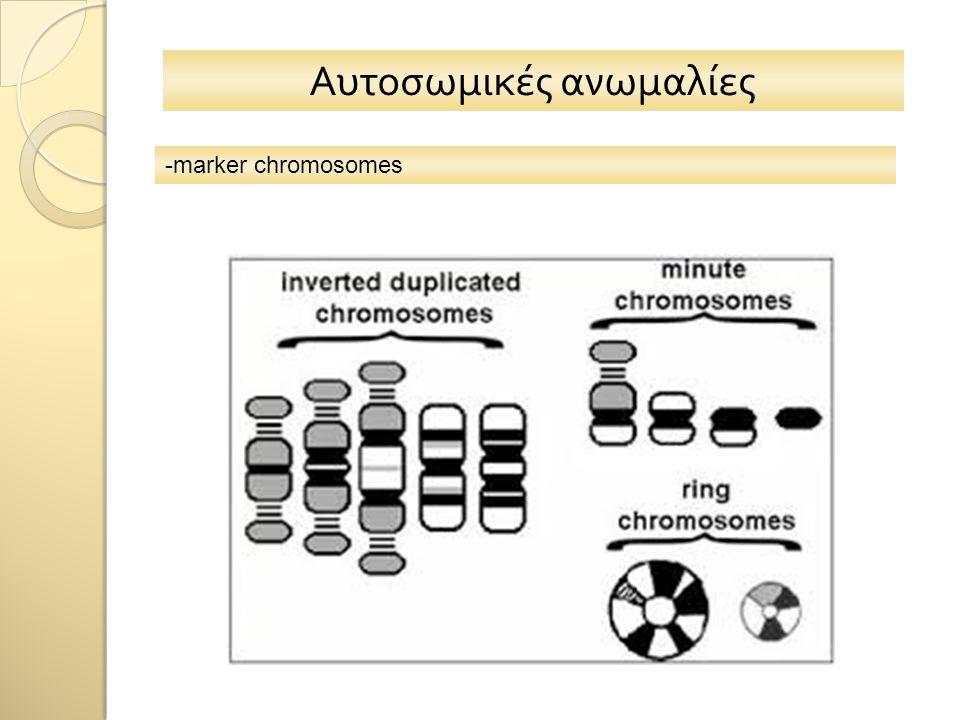 Αυτοσωμικές ανωμαλίες -marker chromosomes