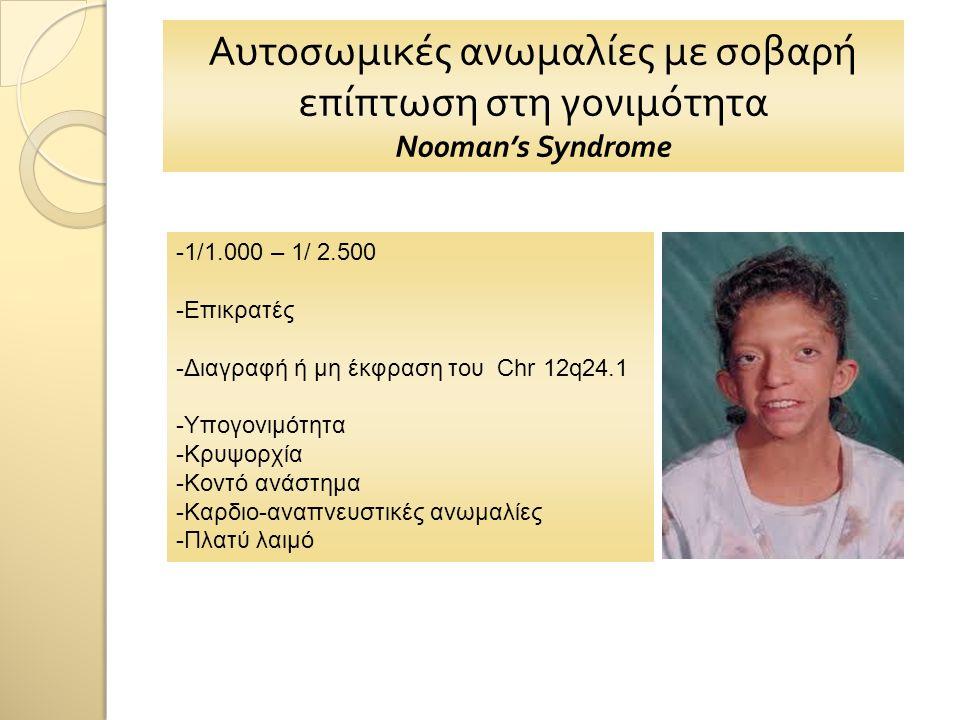 Αυτοσωμικές ανωμαλίες με σοβαρή επίπτωση στη γονιμότητα Nooman's Syndrome -1/1.000 – 1/ 2.500 -Επικρατές -Διαγραφή ή μη έκφραση του Chr 12q24.1 -Υπογονιμότητα -Κρυψορχία -Κοντό ανάστημα -Καρδιο-αναπνευστικές ανωμαλίες -Πλατύ λαιμό