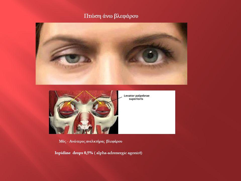 Πτώση άνω βλεφάρου Iopidine drops 0,5% ( alpha-adrenergic agonist) Μύς - Ανώτερος ανελκτήρας βλεφάρου