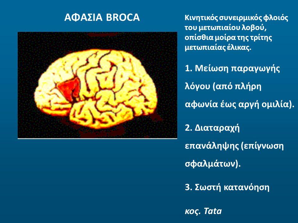 ΑΦΑΣΙΑ BROCA Κινητικός συνειρμικός φλοιός του μετωπιαίου λοβού, οπίσθια μοίρα της τρίτης μετωπιαίας έλικας. 1. Μείωση παραγωγής λόγου (από πλήρη αφωνί