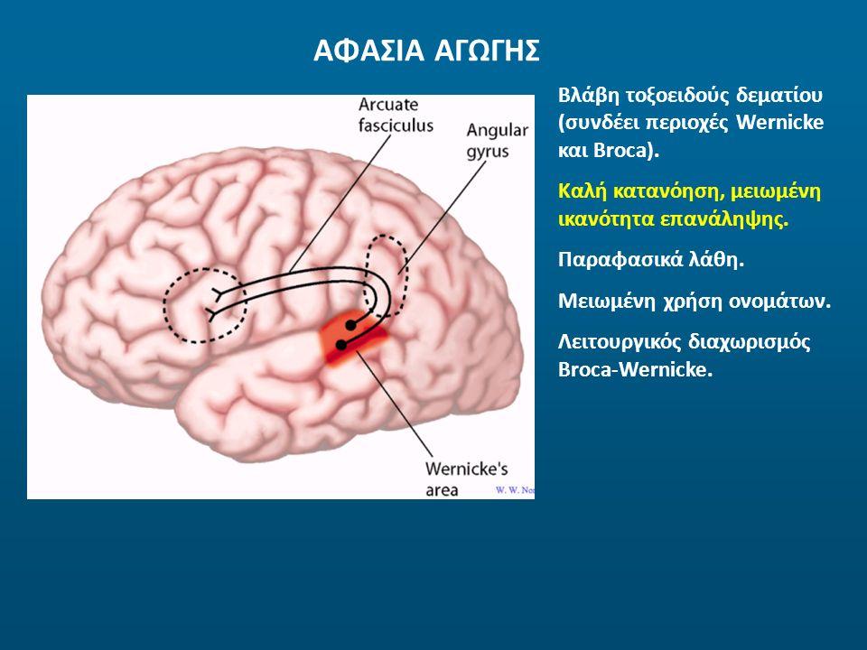 ΑΦΑΣΙΑ ΑΓΩΓΗΣ Βλάβη τοξοειδούς δεματίου (συνδέει περιοχές Wernicke και Broca). Καλή κατανόηση, μειωμένη ικανότητα επανάληψης. Παραφασικά λάθη. Μειωμέν