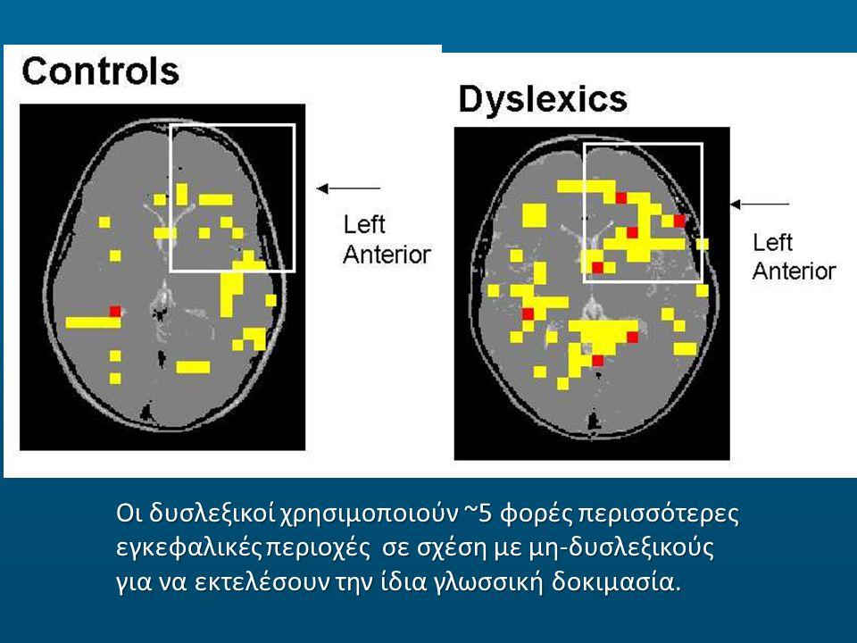 Οι δυσλεξικοί χρησιμοποιούν ~5 φορές περισσότερες εγκεφαλικές περιοχές σε σχέση με μη-δυσλεξικούς για να εκτελέσουν την ίδια γλωσσική δοκιμασία.