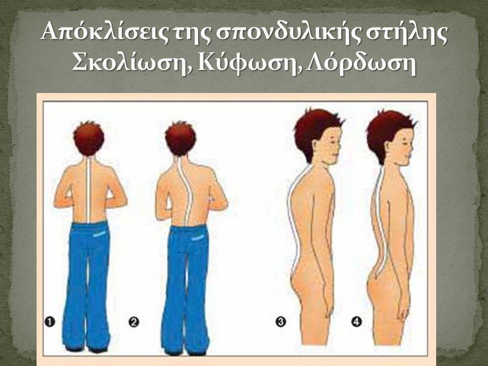 Αίτια η παρατεταμένη κακή στάση σώματος η εγκυμοσύνη η παχυσαρκία η εφηβεία