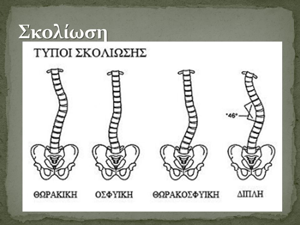Ως σκολίωση χαρακτηρίζεται η πλάγια κάμψη της σπονδυλικής στήλης στη θωρακική και οσφυική μοίρα με ταυτόχρονη στροφή ενός ή περισσοτέρων σπονδύλων προς την κυρτή πλευρά.