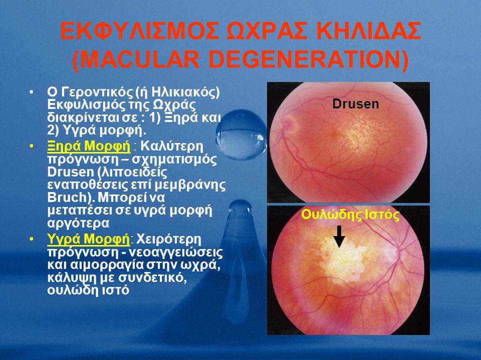ΕΚΦΥΛΙΣΜΟΣ ΩΧΡΑΣ ΚΗΛΙΔΑΣ (MACULAR DEGENERATION) Ο Γεροντικός (ή Ηλικιακός) Εκφυλισμός της Ωχράς διακρίνεται σε : 1) Ξηρά και 2) Υγρά μορφή.
