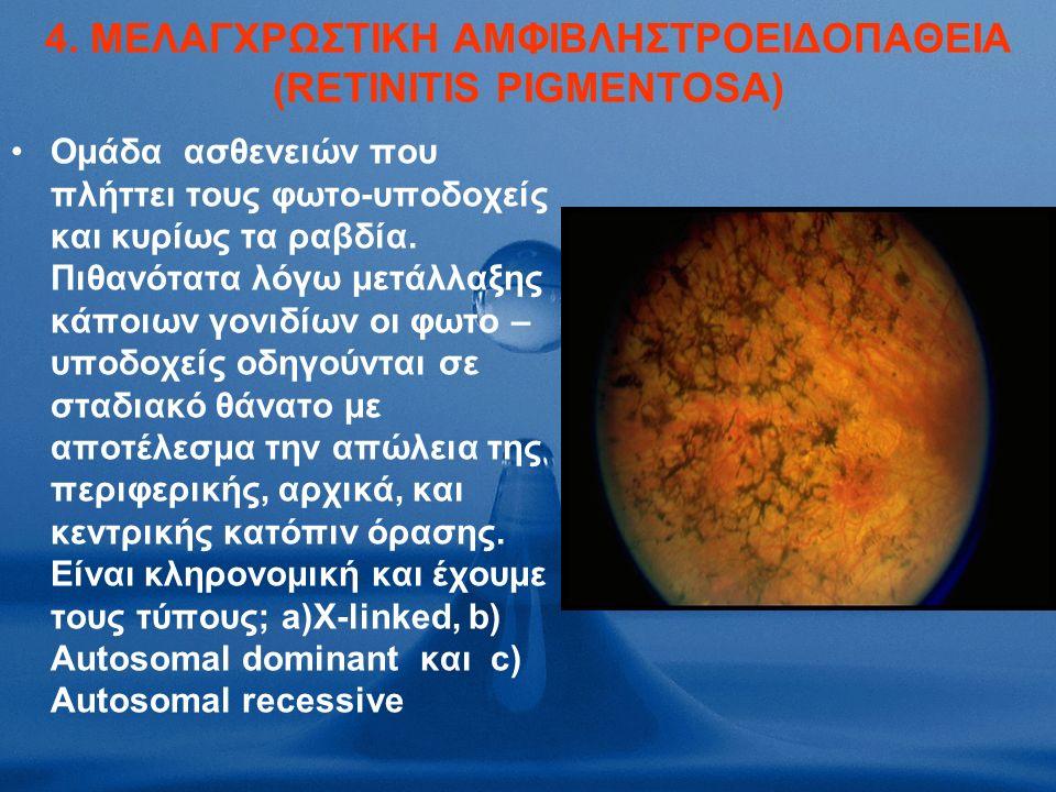 4. ΜΕΛΑΓΧΡΩΣΤΙΚΗ ΑΜΦΙΒΛΗΣΤΡΟΕΙΔΟΠΑΘΕΙΑ (RETINITIS PIGMENTOSA) Ομάδα ασθενειών που πλήττει τους φωτο-υποδοχείς και κυρίως τα ραβδία. Πιθανότατα λόγω με