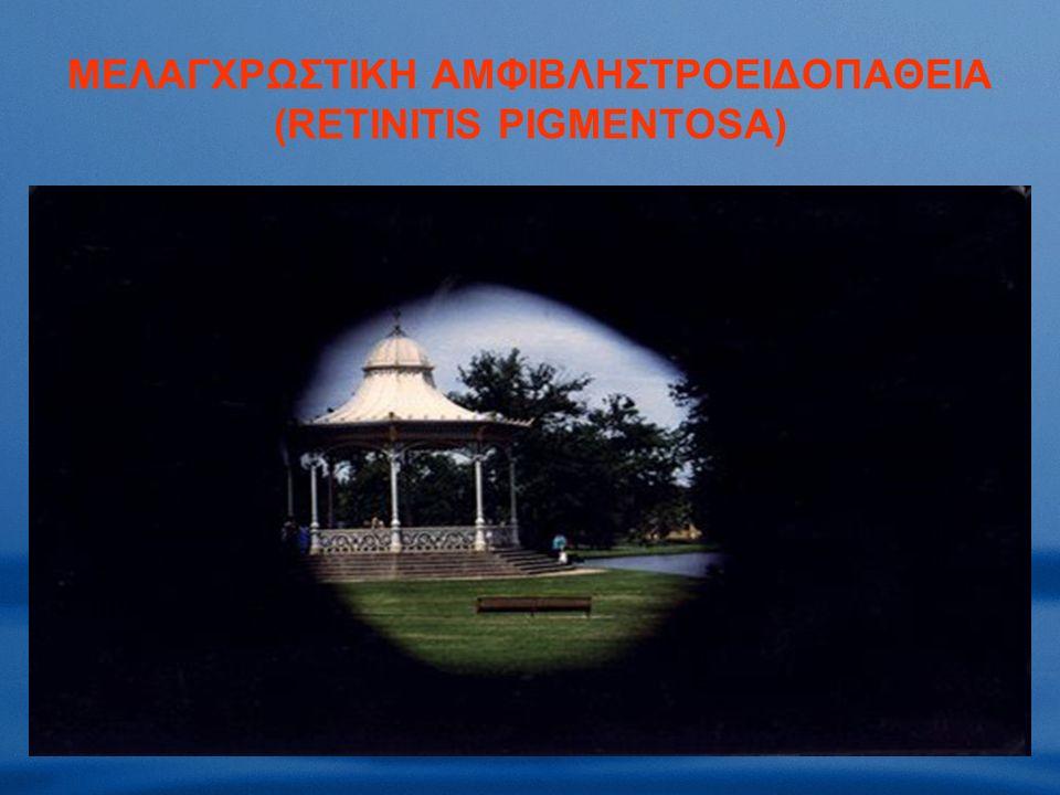 ΜΕΛΑΓΧΡΩΣΤΙΚΗ ΑΜΦΙΒΛΗΣΤΡΟΕΙΔΟΠΑΘΕΙΑ (RETINITIS PIGMENTOSA)