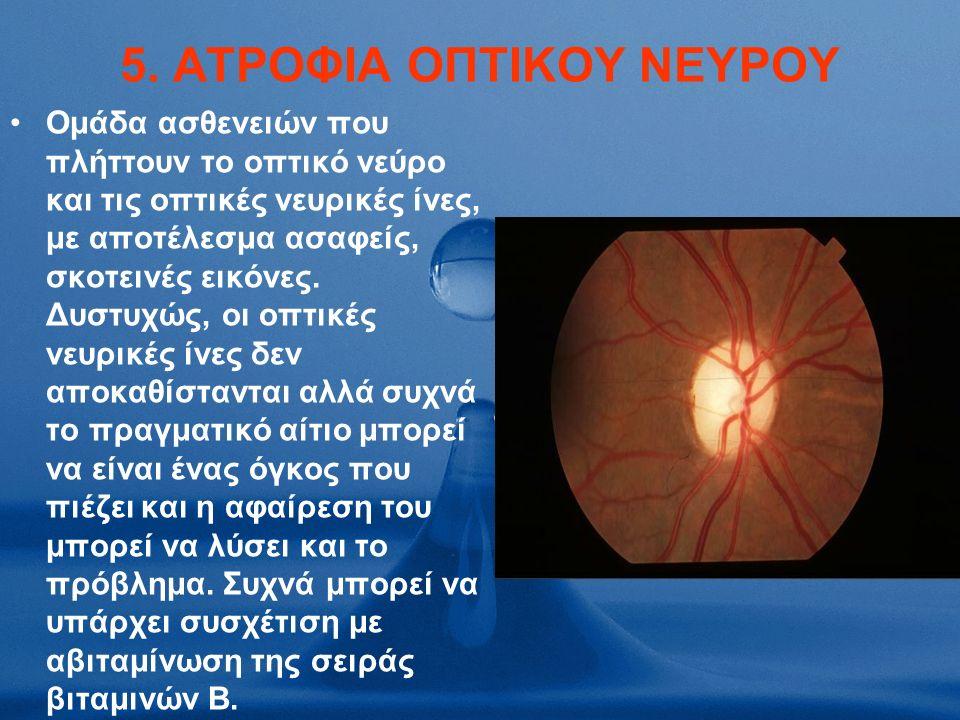 5. ATΡΟΦΙΑ ΟΠΤΙΚΟΥ ΝΕΥΡΟΥ Ομάδα ασθενειών που πλήττουν το οπτικό νεύρο και τις οπτικές νευρικές ίνες, με αποτέλεσμα ασαφείς, σκοτεινές εικόνες. Δυστυχ