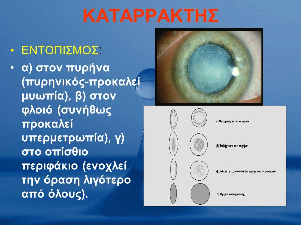 ΚΑΤΑΡΡΑΚΤΗΣ ΕΝΤΟΠΙΣΜΟΣ : α) στον πυρήνα (πυρηνικός-προκαλεί μυωπία), β) στον φλοιό (συνήθως προκαλεί υπερμετρωπία), γ) στο οπίσθιο περιφάκιο (ενοχλεί την όραση λιγότερο από όλους).