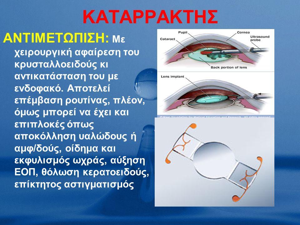 ΚΑΤΑΡΡΑΚΤΗΣ ΑΝΤΙΜΕΤΩΠΙΣΗ: Με χειρουργική αφαίρεση του κρυσταλλοειδούς κι αντικατάσταση του με ενδοφακό.