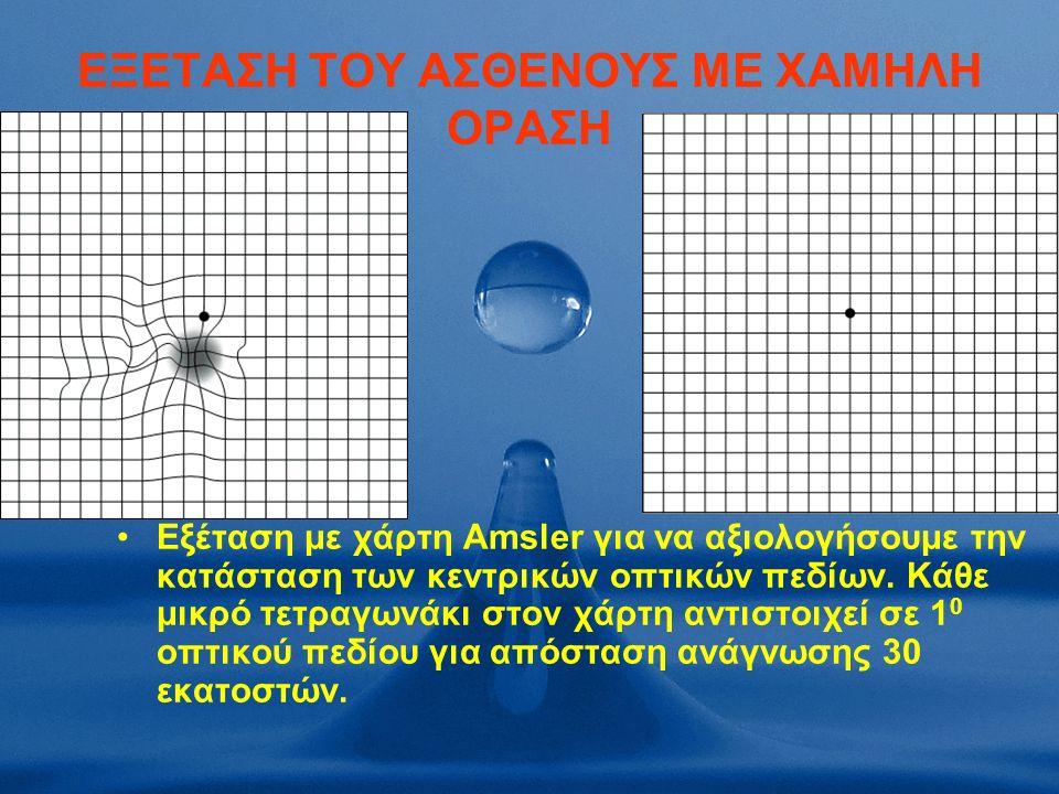 EΞΕΤΑΣΗ ΤΟΥ ΑΣΘΕΝΟΥΣ ΜΕ ΧΑΜΗΛΗ ΟΡΑΣΗ Εξέταση με χάρτη Amsler για να αξιολογήσουμε την κατάσταση των κεντρικών οπτικών πεδίων.