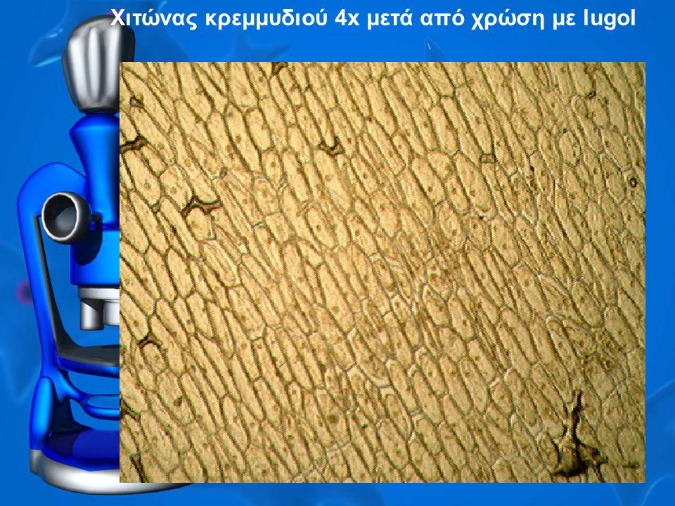 Χιτώνας κρεμμυδιού 4x μετά από χρώση με lugol