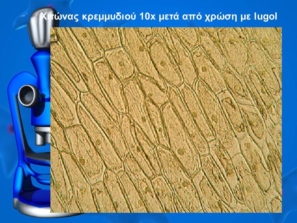 Χιτώνας κρεμμυδιού 10x μετά από χρώση με lugol