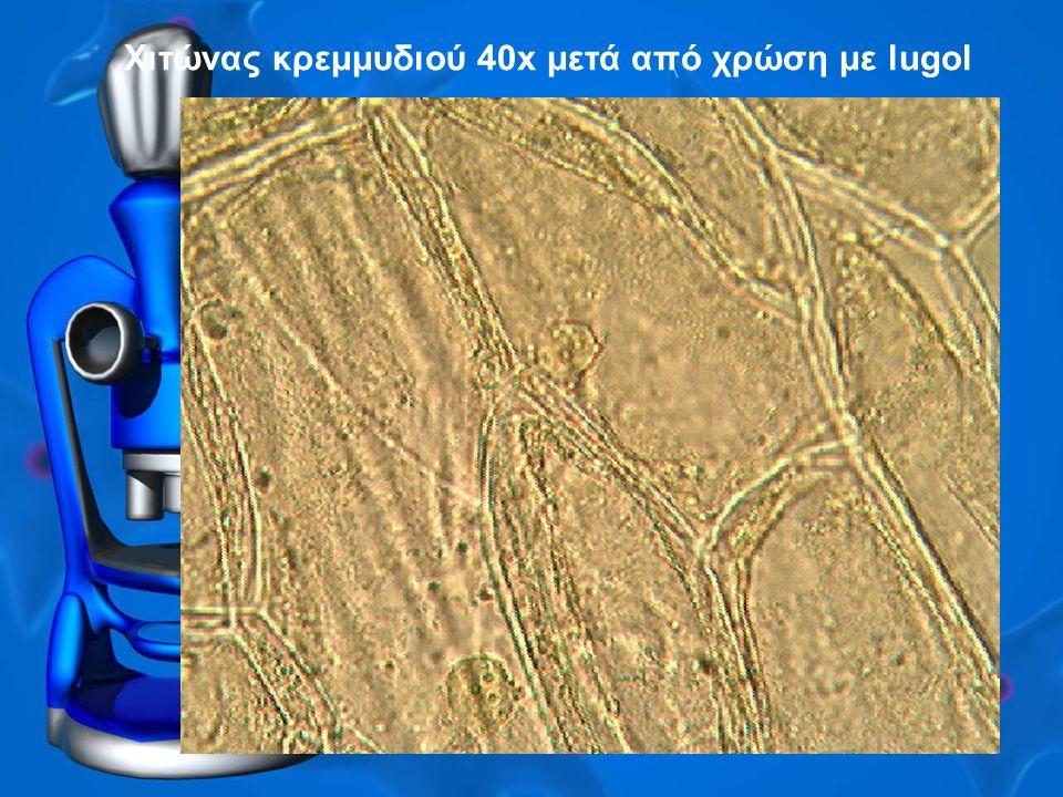 Χιτώνας κρεμμυδιού 40x μετά από χρώση με lugol