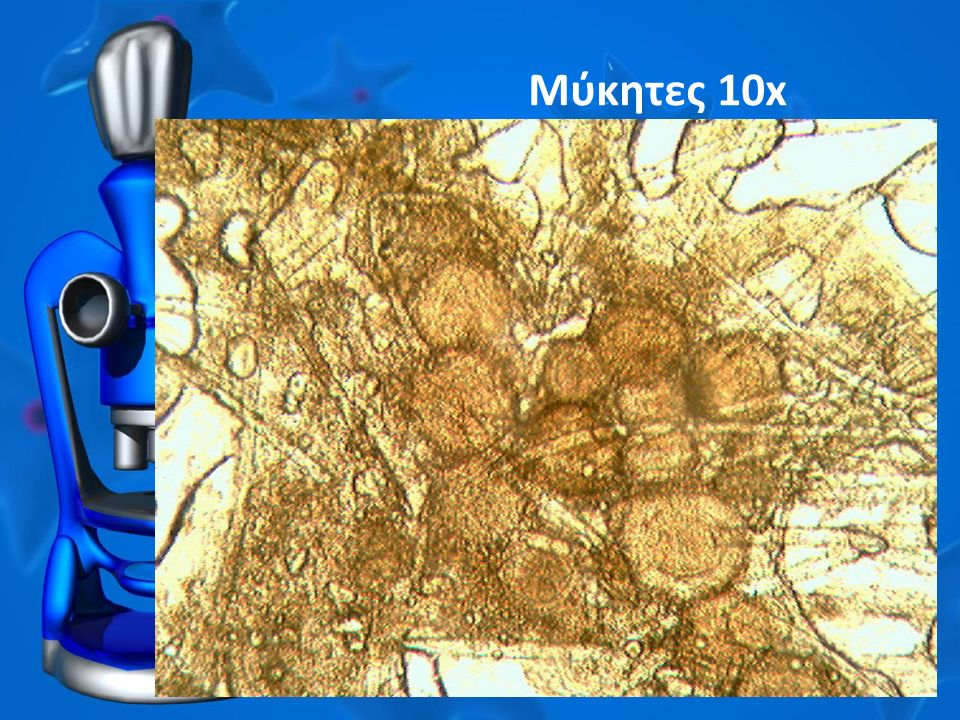 Μύκητες 10x