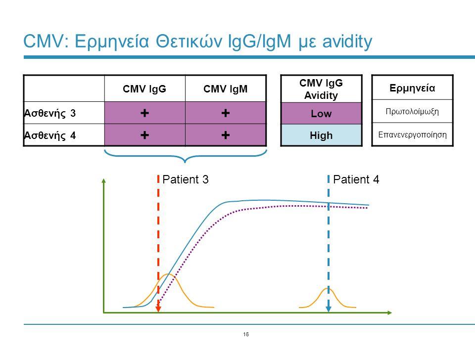 16 CMV: Ερμηνεία Θετικών IgG/IgM με avidity CMV IgGCMV IgM Ασθενής 3 ++ Ασθενής 4 ++ Ερμηνεία Πρωτολοίμωξη Επανενεργοποίηση CMV IgG Avidity Low High P
