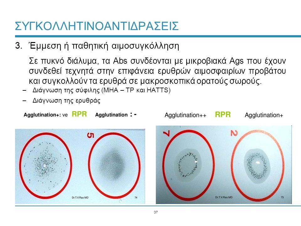 37 ΣΥΓΚΟΛΛΗΤΙΝΟΑΝΤΙΔΡΑΣΕΙΣ 3.Έμμεση ή παθητική αιμοσυγκόλληση Σε πυκνό διάλυμα, τα Abs συνδέονται με μικροβιακά Ags που έχουν συνδεθεί τεχνητά στην επιφάνεια ερυθρών αιμοσφαιρίων προβάτου και συγκολλούν τα ερυθρά σε μακροσκοπικά ορατούς σωρούς.