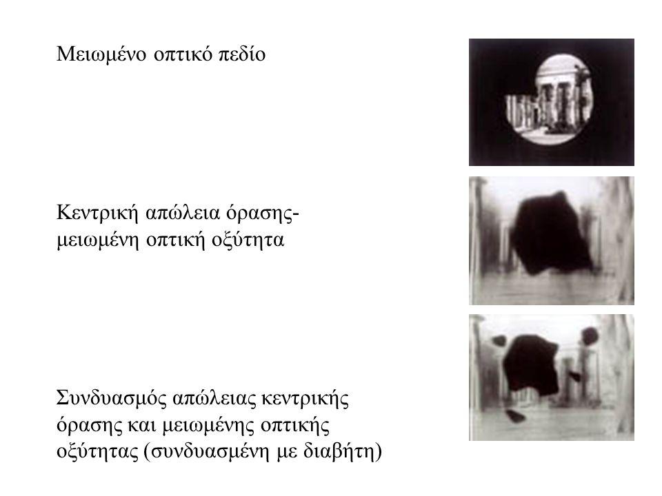 Μειωμένο οπτικό πεδίο Κεντρική απώλεια όρασης- μειωμένη οπτική οξύτητα Συνδυασμός απώλειας κεντρικής όρασης και μειωμένης οπτικής οξύτητας (συνδυασμένη με διαβήτη)
