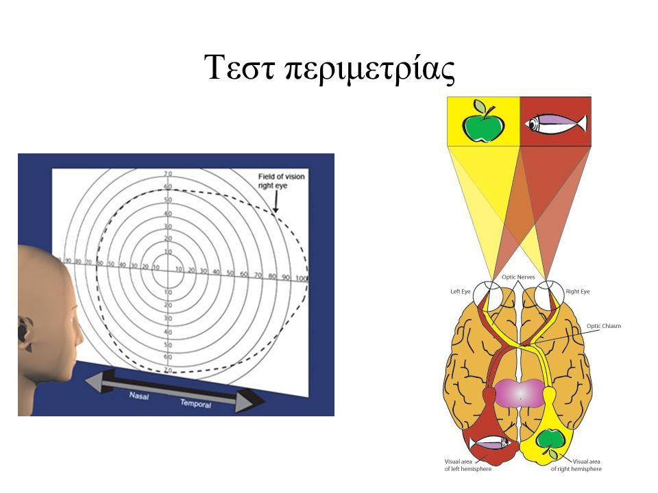Τεστ περιμετρίας