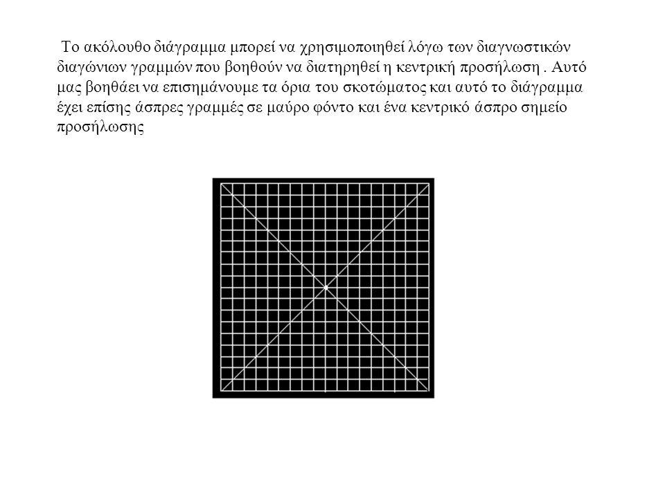 Το ακόλουθο διάγραμμα μπορεί να χρησιμοποιηθεί λόγω των διαγνωστικών διαγώνιων γραμμών που βοηθούν να διατηρηθεί η κεντρική προσήλωση.