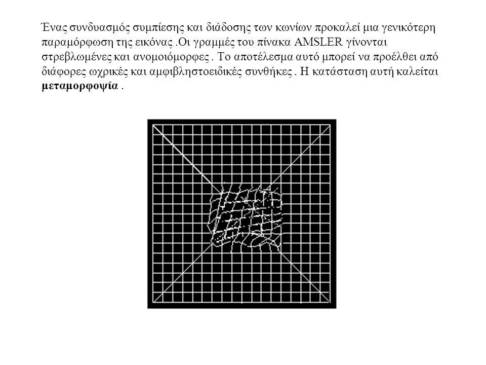 Ένας συνδυασμός συμπίεσης και διάδοσης των κωνίων προκαλεί μια γενικότερη παραμόρφωση της εικόνας.Οι γραμμές του πίνακα AMSLER γίνονται στρεβλωμένες και ανομοιόμορφες.