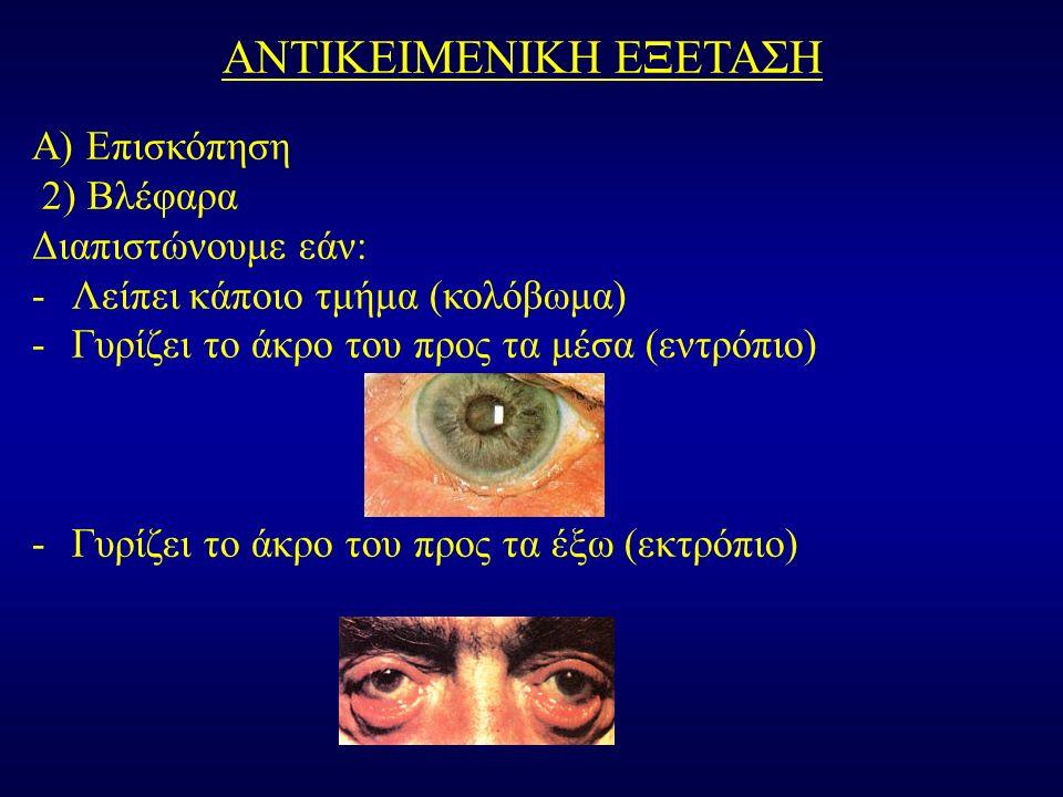 ΑΝΤΙΚΕΙΜΕΝΙΚΗ ΕΞΕΤΑΣΗ Α) Επισκόπηση 2) Βλέφαρα Διαπιστώνουμε εάν: -Λείπει κάποιο τμήμα (κολόβωμα) -Γυρίζει το άκρο του προς τα μέσα (εντρόπιο) -Γυρίζει το άκρο του προς τα έξω (εκτρόπιο)