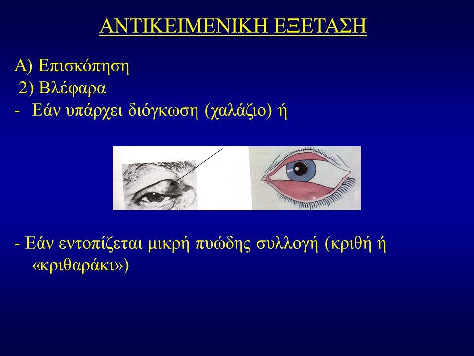 ΑΝΤΙΚΕΙΜΕΝΙΚΗ ΕΞΕΤΑΣΗ Α) Επισκόπηση 2) Βλέφαρα -Εάν υπάρχει διόγκωση (χαλάζιο) ή - Εάν εντοπίζεται μικρή πυώδης συλλογή (κριθή ή «κριθαράκι»)