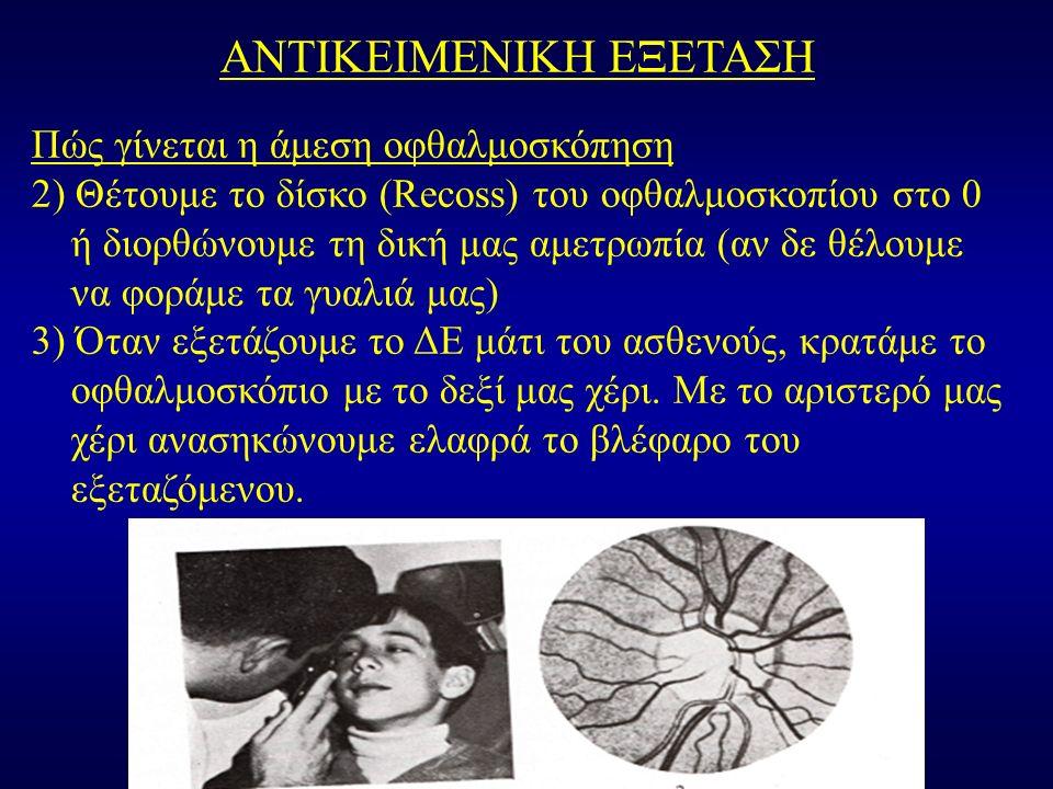 ΑΝΤΙΚΕΙΜΕΝΙΚΗ ΕΞΕΤΑΣΗ Πώς γίνεται η άμεση οφθαλμοσκόπηση 2) Θέτουμε το δίσκο (Recoss) του οφθαλμοσκοπίου στο 0 ή διορθώνουμε τη δική μας αμετρωπία (αν δε θέλουμε να φοράμε τα γυαλιά μας) 3) Όταν εξετάζουμε το ΔΕ μάτι του ασθενούς, κρατάμε το οφθαλμοσκόπιο με το δεξί μας χέρι.