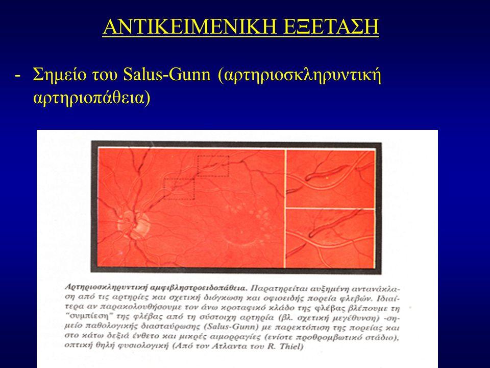 ΑΝΤΙΚΕΙΜΕΝΙΚΗ ΕΞΕΤΑΣΗ -Σημείο του Salus-Gunn (αρτηριοσκληρυντική αρτηριοπάθεια)