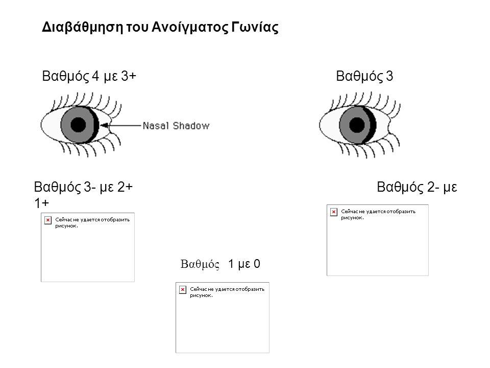 Διαβάθμηση του Ανοίγματος Γωνίας Βαθμός 4 με 3+Βαθμός 3 Βαθμός 3- με 2+ Βαθμός 2- με 1+ Βαθμός 1 με 0