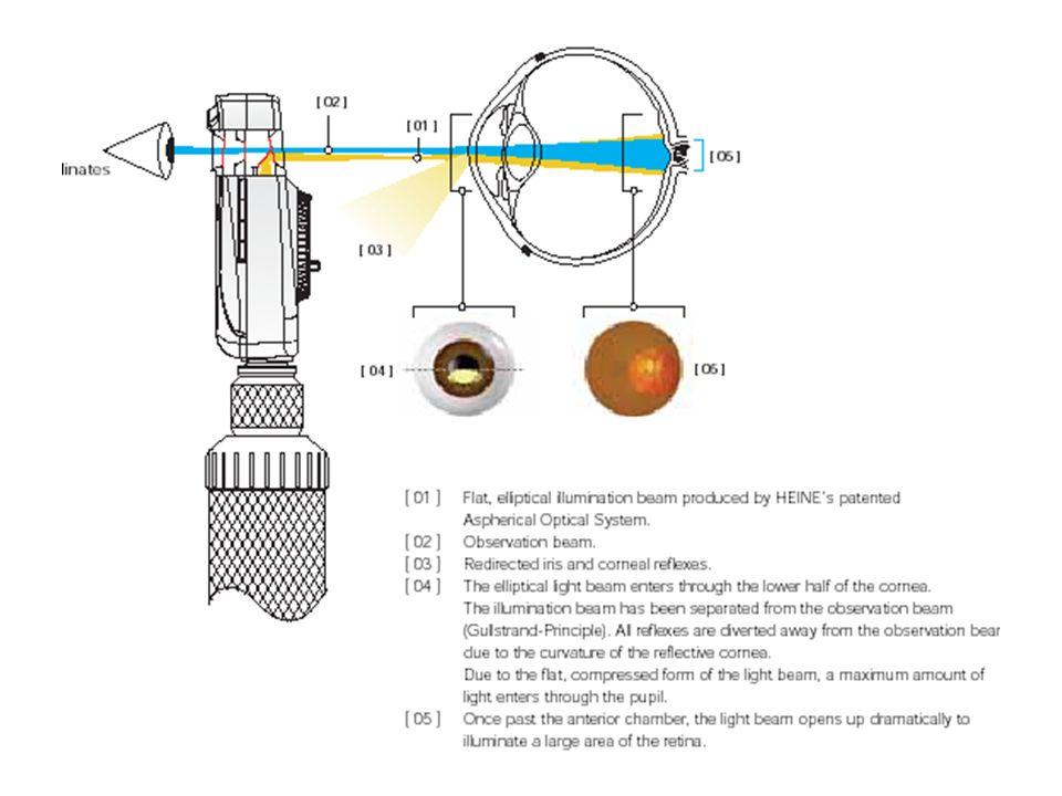 ΠΕΡΙΦΕΡΕΙΑΚΗ ΟΡΑΣΗ Η περιφερειακή όραση με το άμεσο οφθαλμοσκόπιο είναι περιορισμένη εξ' αιτίας της κόρης η οποία γίνεται πολύ στενή για τις εξετάσεις φωτισμού.