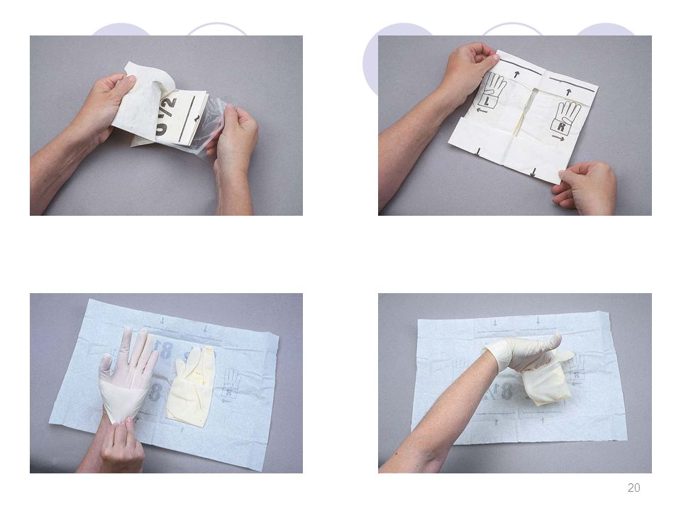 Χειρισμός αποστειρωμένων πακέτων ΕΝΕΡΓΕΙΑ Τα αποστειρωμένα πακέτα ανοίγονται μακριά από το σώμα σας.