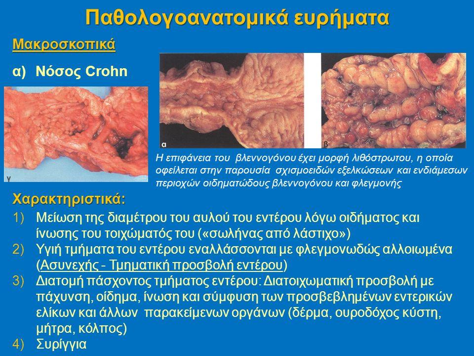 Μακροσκοπικά α)Νόσος Crohn Παθολογοανατομικά ευρήματα H επιφάνεια του βλεννογόνου έχει μορφή λιθόστρωτου, η οποία οφείλεται στην παρουσία σχισμοειδών εξελκώσεων και ενδιάμεσων περιοχών οιδηματώδους βλεννογόνου και φλεγμονής Χαρακτηριστικά: 1)Μείωση της διαμέτρου του αυλού του εντέρου λόγω οιδήματος και ίνωσης του τοιχώματός του («σωλήνας από λάστιχο») 2)Υγιή τμήματα του εντέρου εναλλάσσονται με φλεγμονωδώς αλλοιωμένα (Ασυνεχής - Τμηματική προσβολή εντέρου) 3)Διατομή πάσχοντος τμήματος εντέρου: Διατοιχωματική προσβολή με πάχυνση, οίδημα, ίνωση και σύμφυση των προσβεβλημένων εντερικών ελίκων και άλλων παρακείμενων οργάνων (δέρμα, ουροδόχος κύστη, μήτρα, κόλπος) 4)Συρίγγια