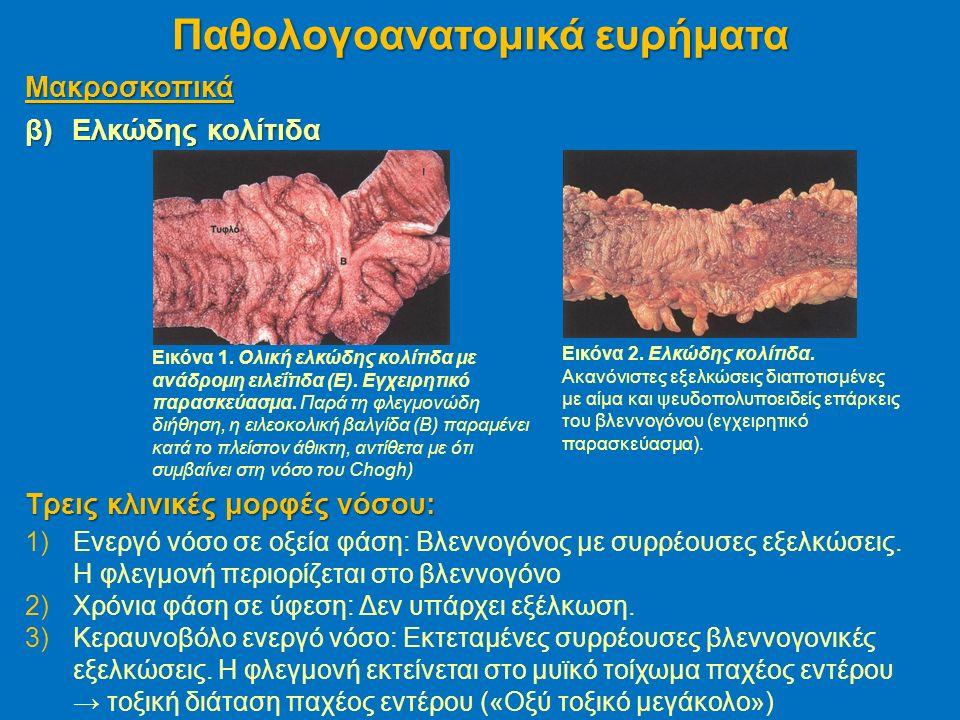 Μακροσκοπικά β)Ελκώδης κολίτιδα Παθολογοανατομικά ευρήματα Εικόνα 1.