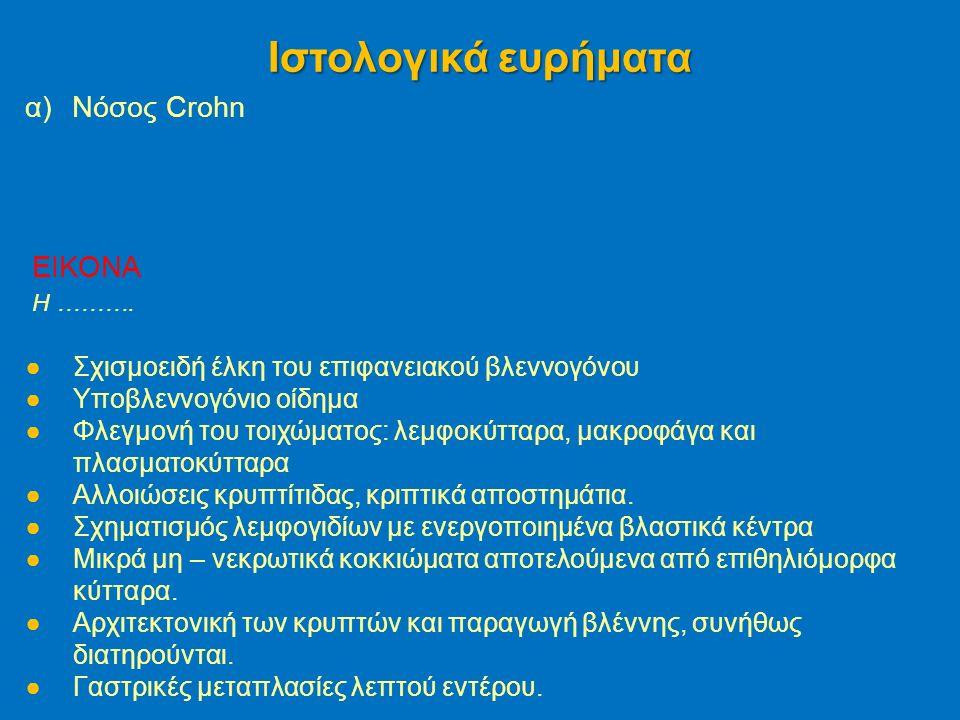 α)Νόσος Crohn Ιστολογικά ευρήματα EIKONA H ……….
