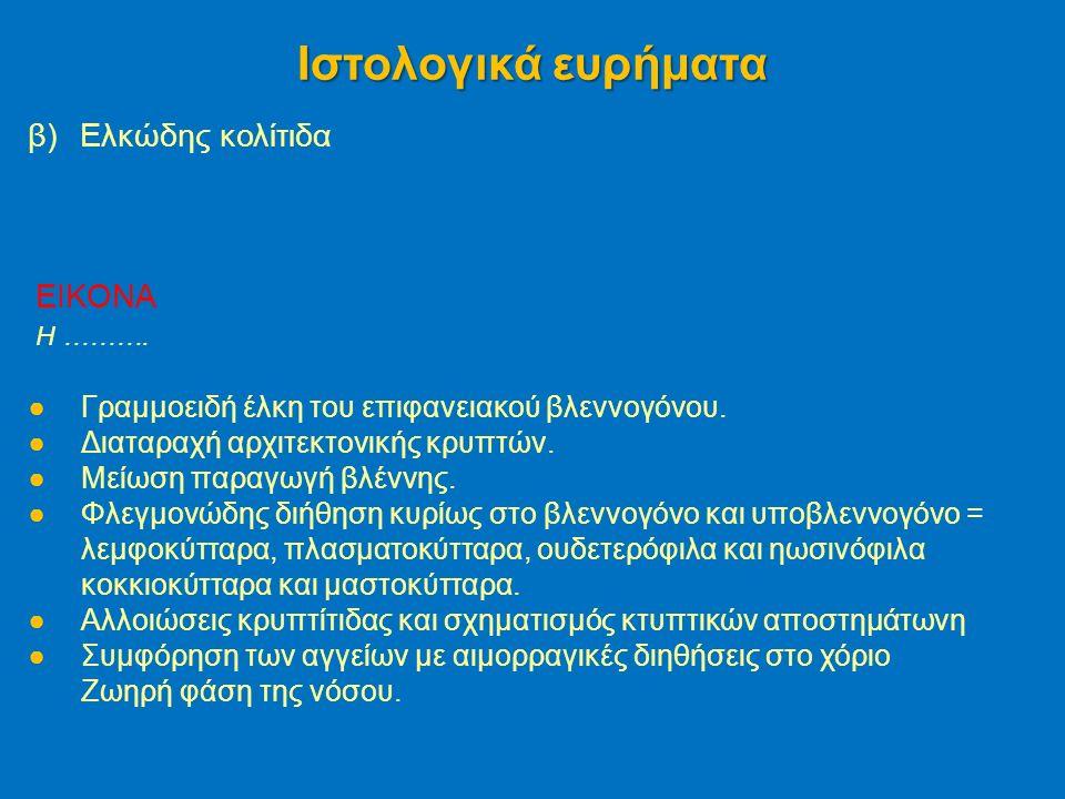 β)Ελκώδης κολίτιδα Ιστολογικά ευρήματα EIKONA H ……….