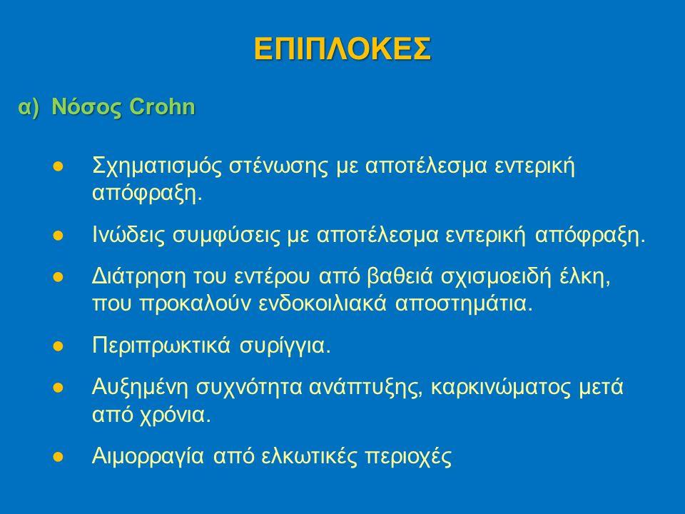 α)Νόσος Crohn ●Σχηματισμός στένωσης με αποτέλεσμα εντερική απόφραξη.