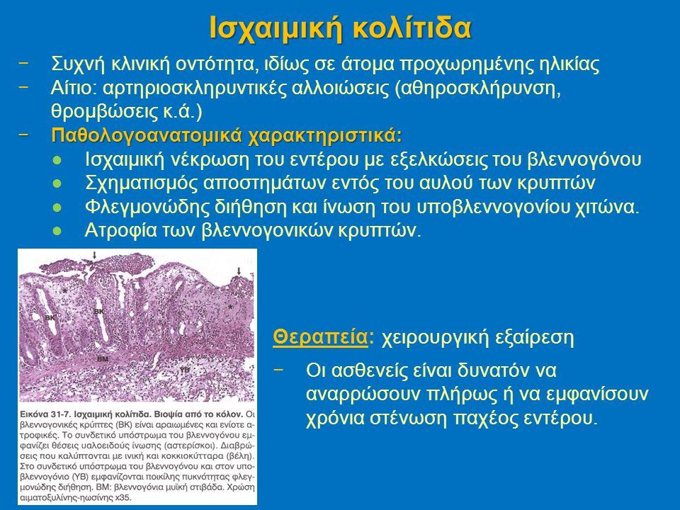 −Συχνή κλινική οντότητα, ιδίως σε άτομα προχωρημένης ηλικίας −Αίτιο: αρτηριοσκληρυντικές αλλοιώσεις (αθηροσκλήρυνση, θρομβώσεις κ.ά.) −Παθολογοανατομικά χαρακτηριστικά: ●Ισχαιμική νέκρωση του εντέρου με εξελκώσεις του βλεννογόνου ●Σχηματισμός αποστημάτων εντός του αυλού των κρυπτών ●Φλεγμονώδης διήθηση και ίνωση του υποβλεννογονίου χιτώνα.
