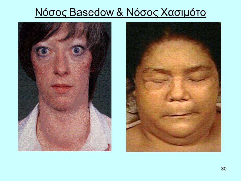 30 Νόσος Basedow & Νόσος Χασιμότο