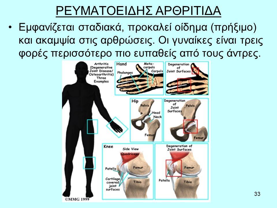 33 ΡΕΥΜΑΤΟΕΙΔΗΣ ΑΡΘΡΙΤΙΔΑ Εμφανίζεται σταδιακά, προκαλεί οίδημα (πρήξιμο) και ακαμψία στις αρθρώσεις.