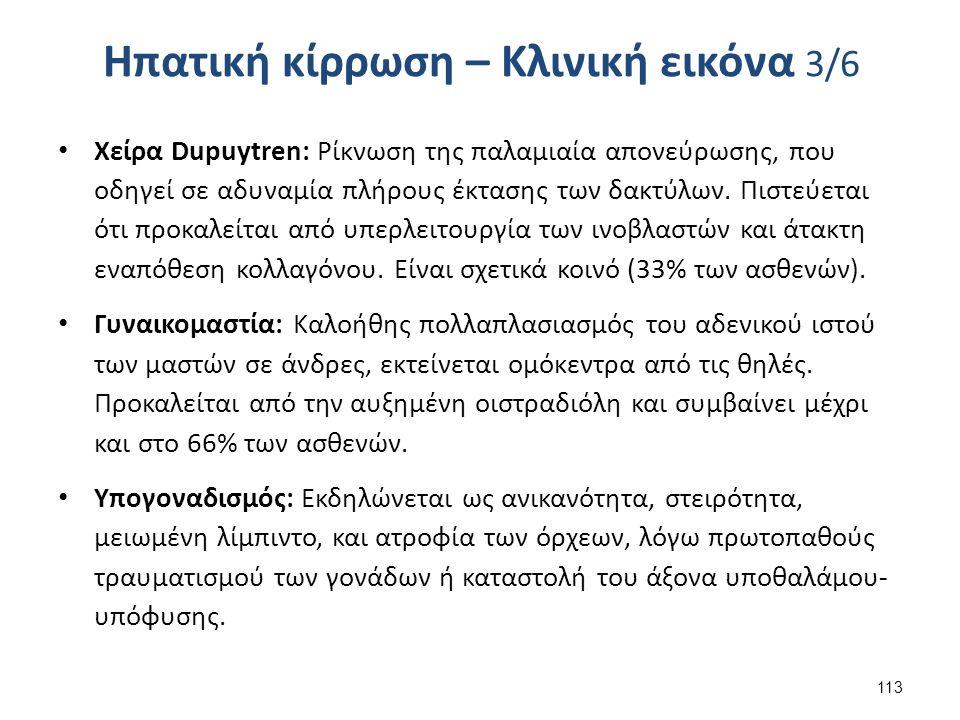 Ηπατική κίρρωση – Κλινική εικόνα 3/6 Χείρα Dupuytren: Ρίκνωση της παλαμιαία απονεύρωσης, που οδηγεί σε αδυναμία πλήρους έκτασης των δακτύλων.