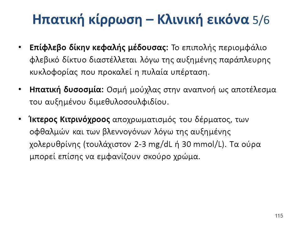 Ηπατική κίρρωση – Κλινική εικόνα 5/6 Επίφλεβο δίκην κεφαλής μέδουσας: Το επιπολής περιομφάλιο φλεβικό δίκτυο διαστέλλεται λόγω της αυξημένης παράπλευρης κυκλοφορίας που προκαλεί η πυλαία υπέρταση.