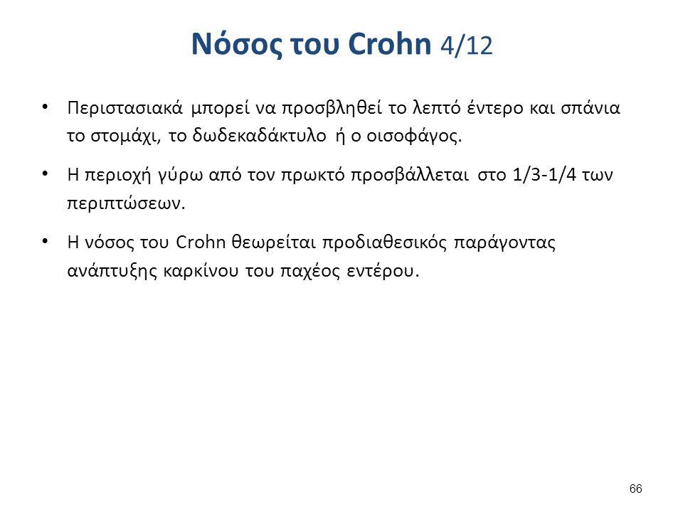 Νόσος του Crohn 4/12 Περιστασιακά μπορεί να προσβληθεί το λεπτό έντερο και σπάνια το στομάχι, το δωδεκαδάκτυλο ή ο οισοφάγος.